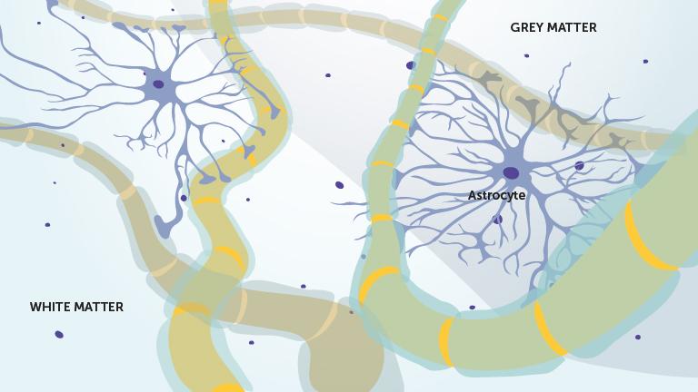 3_a_astrocytt_celler_engelsk