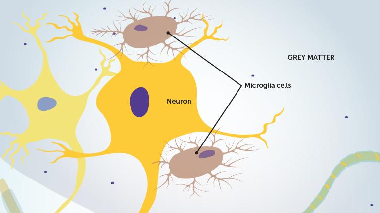 3_a_microglia_celler_engelsk