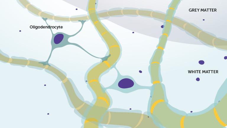 3_a_oligodendrocytt_engelsk